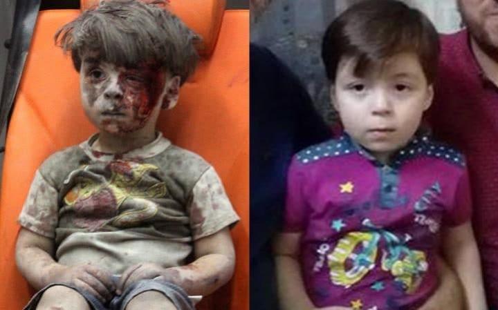 """ยังจำได้ไหม """"ออมราน"""" หนูน้อยถูกระเบิดในซีเรีย จนสื่อตีข่าวไปทั่วโลก มาดูชีวิตปัจจุบันของเขากัน (ชมภาพ)"""